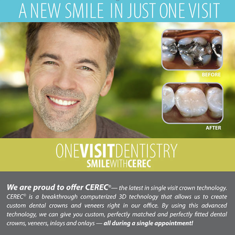 CEREC advertisement
